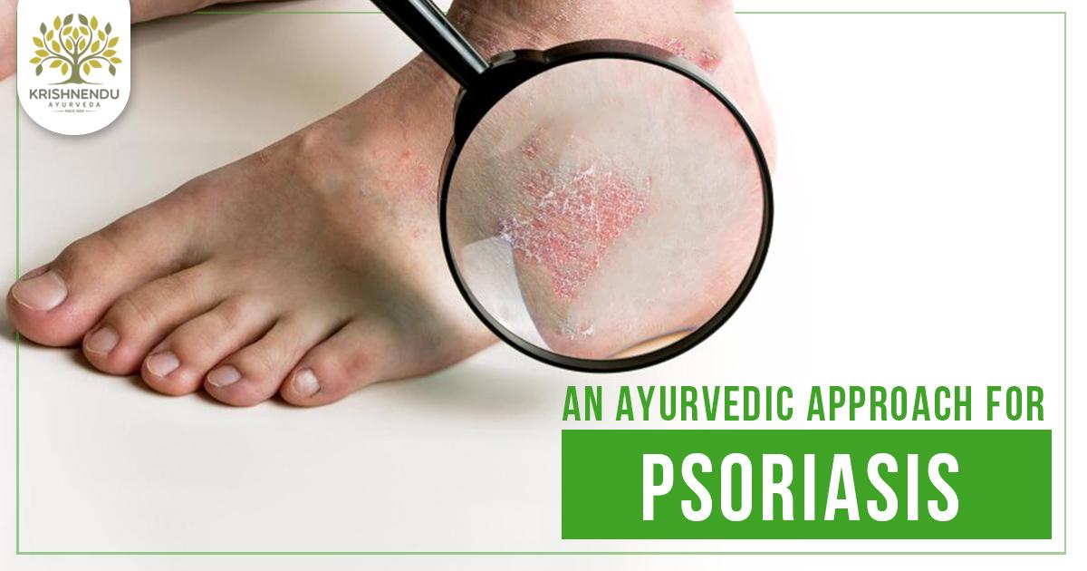 Psoriasis and Ayurvedic Treatment - Krishnendu Ayurveda