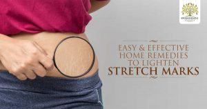 Read more about the article 8 Easy & Effective Home Remedies to Lighten Stretch Marks