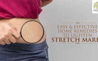 Home Remedies to Lighten Stretch Marks