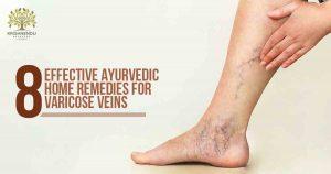 VARICOSE VEINS: 8 EFFECTIVE AYURVEDIC HOME REMEDIES